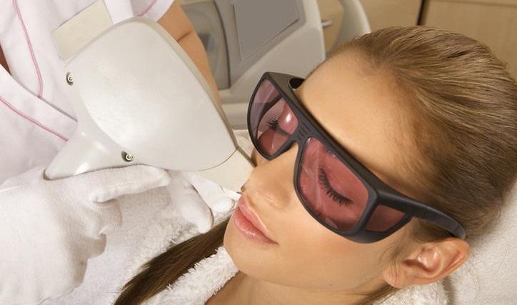 Laser Haarentfernung